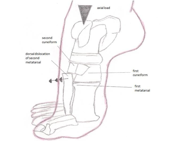 Lisfranc_injury